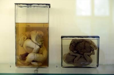 muzej srpskog lekarskog društva fetus fetusi medicina zdravstvo nauka plod embrion embrioni