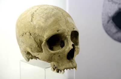 muzej srpskog lekarskog društva lobanja kostur skelet glava kosti anatomija